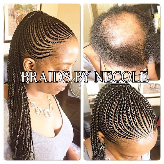 Best 14 extraordinary alopecia camouflage cornrows braids Braided Hairstyles For Thin Black Hair Choices