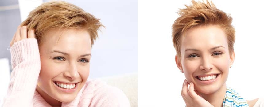 Awesome styling tips for hair growth after chemo Short Haircuts For Chemo Patients Inspirations